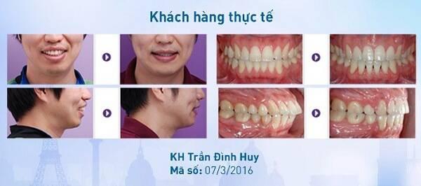 Niềng răng bị hóp má? Sự thật có như bạn đang nghĩ? 6