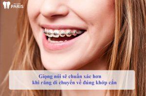 Niềng răng phát âm có ảnh hưởng không? [Chuyên gia giải đáp] 2