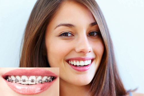 Niềng răng xong có đẹp hơn không ? 96% người không bỏ qua những lưu ý này