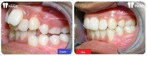 Niềng răng xong có đẹp hơn không ? Những lưu ý để niềng răng hiệu quả cao