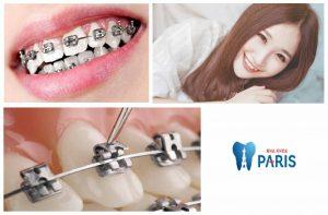 Niềng răng giữ lại răng khểnh có tốt hay không? 2