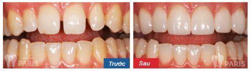 Top 2 cách chỉnh răng hô hàm trên HIỆU QUẢ với từng trường hợp 2