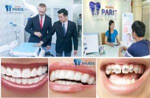 Niềng răng có đau không ? – Trọn bộ giải đáp từ chuyên gia