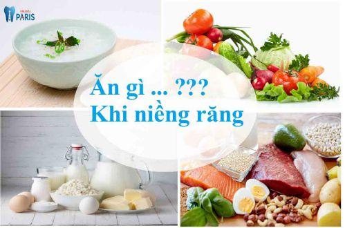 Ăn gì khi niềng răng & nên kiêng ăn gì để đảm bảo Hiệu quả tốt nhất 1