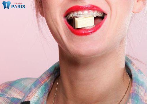 Ăn gì khi niềng răng & nên kiêng ăn gì để đảm bảo Hiệu quả tốt nhất 2