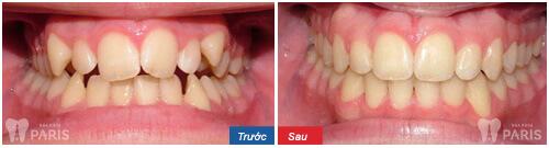 Giá niểng răng hiện nay bao nhiêu là tốt nhất – [ Bảng phí tháng 1/2018]