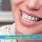 Trọn gói niềng răng giá rẻ là bao nhiêu tiền?
