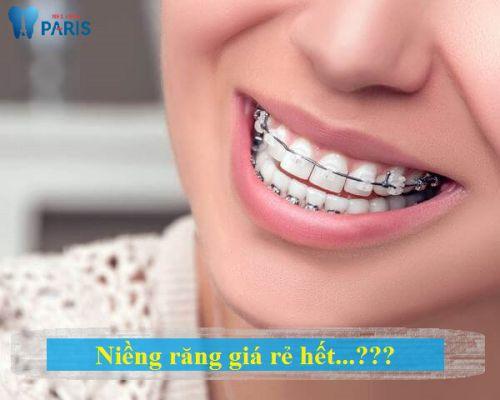 Bảng chi phí niềng răng rẻ nhất bao nhiêu tiền? Bảng giá niềng răng 2018 1