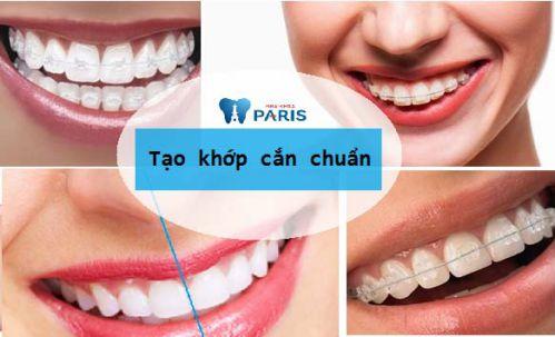 Top 5 lợi ích của niềng răng khiến bạn KHÔNG THỂ NGỜ 2