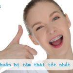 Cẩm nang: Những chú ý khi niềng răng cho hiệu quả tốt nhất