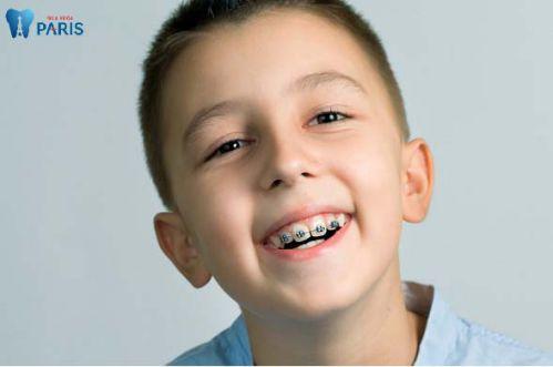Những chú ý khi niềng răng để đảm bảo hiệu quả tốt nhất 2