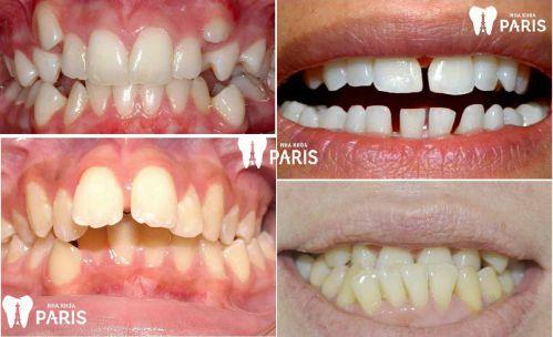 Top 1 Cách xử lý răng mọc lệch hiệu quả an toàn nhất [BS Tư Vấn] 1