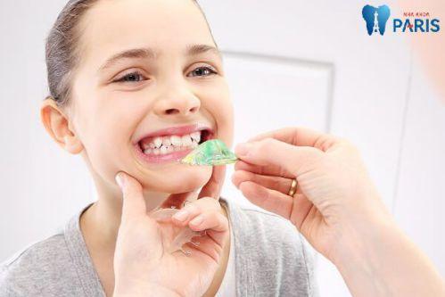 Top 1 Cách xử lý răng mọc lệch hiệu quả an toàn nhất [BS Tư Vấn] 2