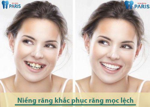 Top 1 Cách xử lý răng mọc lệch hiệu quả an toàn nhất [BS Tư Vấn] 3