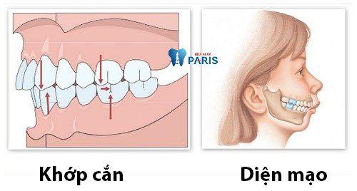 Top 3 cách nắn chỉnh răng vẩu thành công trên 98% đã qua kiểm chứng 1