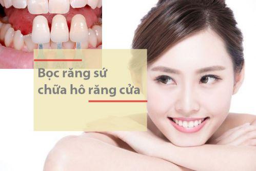 Top 3 cách nắn chỉnh răng vẩu thành công trên 98% đã qua kiểm chứng 2