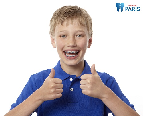 Niềng răng trẻ em - Giải đáp thắc mắc tổng hợp