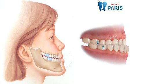 Phẫu thuật cắt xương hàm móm & 4 điều bạn nên biết 1