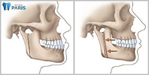 Phẫu thuật cắt xương hàm móm & 4 điều bạn nên biết 4