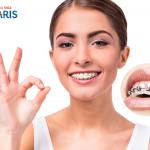 Băn khoăn: Niềng răng có tốt không và ảnh hưởng thế nào?