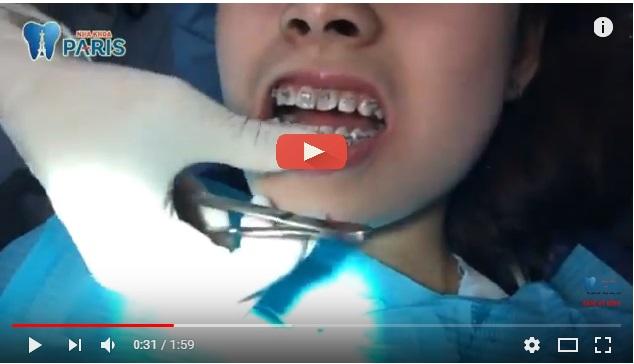 Niềng răng lệch lạc mất bao lâu là chuẩn nhất ? - Chuyên gia tư vấn 3