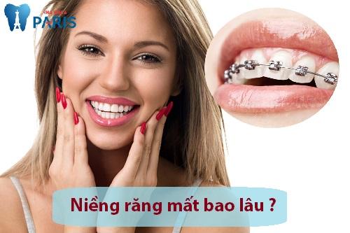 Niềng răng lệch lạc mất bao lâu là chuẩn nhất ? - Chuyên gia tư vấn 1