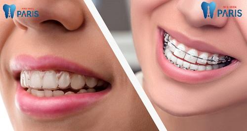 Niềng răng lệch lạc mất bao lâu là chuẩn nhất ? - Chuyên gia tư vấn 2