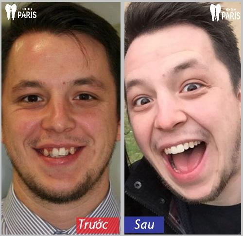 Niềng răng làm thay đổi khuôn mặt thế nào ?