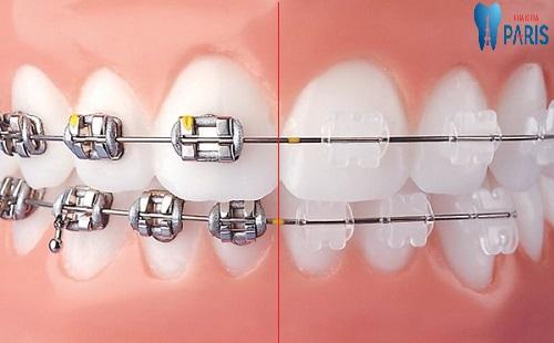Niềng răng loại nào tốt nhất và đảm bảo hiệu quả chỉnh răng