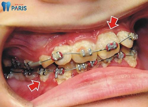 Tại sao bị sâu răng khi niềng răng & Giải pháp khắc phục