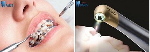 Tại sao bị sâu răng khi niềng răng & Giải pháp khắc phục Hiệu Quả 3