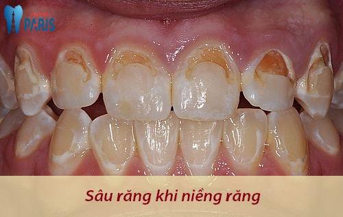 Tại sao bị sâu răng khi niềng răng & Giải pháp khắc phục Hiệu Quả 1