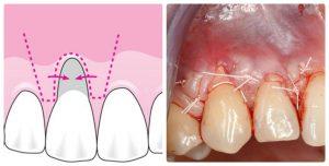 Vì sao niềng răng bị hỏng & cách khắc phục do chuyên gia chỉ định 3