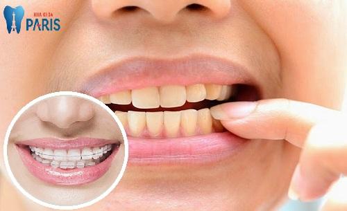 Vì sao niềng răng bị hỏng & cách khắc phục do chuyên gia chỉ định 1