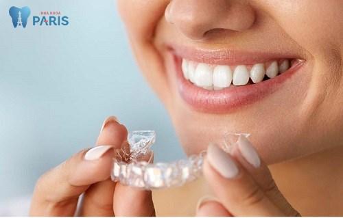 Niềng răng có tháo ra được không trong quá trình thực hiện ?