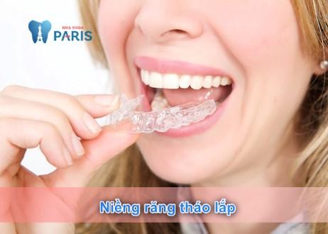 Niềng răng tháo lắp cho người lớn – Thẩm mỹ răng toàn diện
